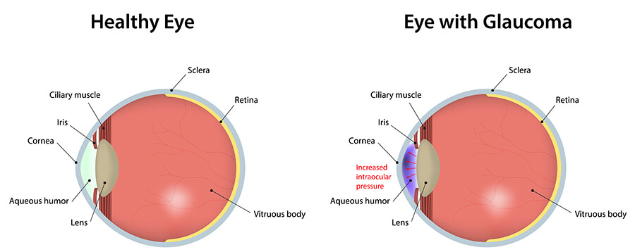 Glaucoma Comparison Diagram
